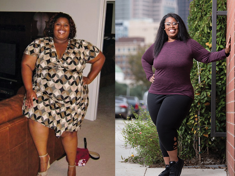 On left is the before picture of woman wearing a dress. On right is after surgery and weight loss picture in stretch pants and a top.