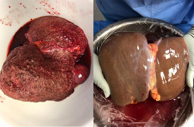 Diseased liver pictured left next to a healthy liver.
