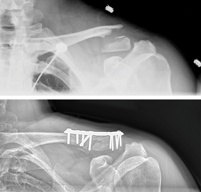 X-rays of shoulder after a bike crash sent motocross rider to the hospital.