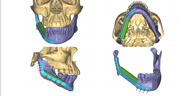 3D model showing where doctors rebuilt Trina Green's jaw during her surgery to remove cancer.
