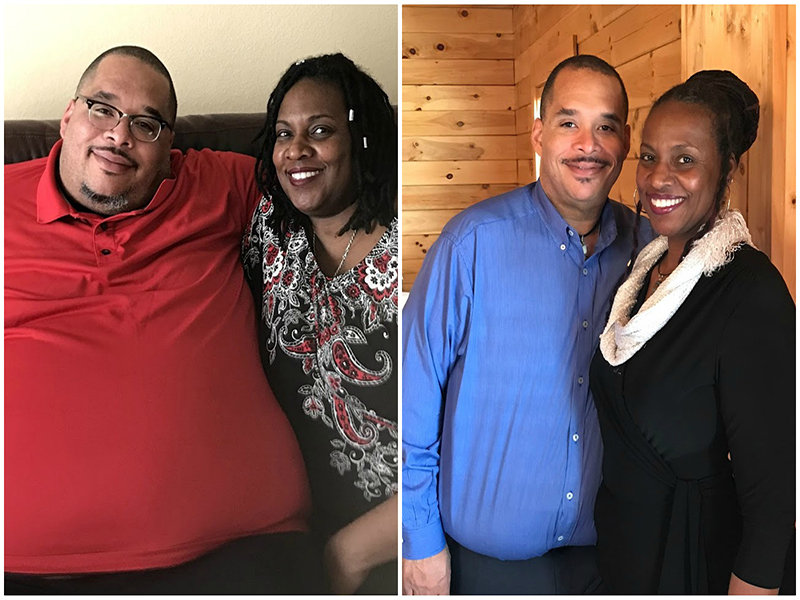 Couple Chuck and Caretha Coulter before and after pictures after weight loss surgery