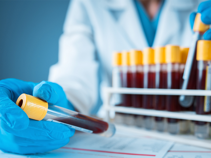Researcher analyzing tubes of blood with yellow caps, used to explain COVID-19 and blood types
