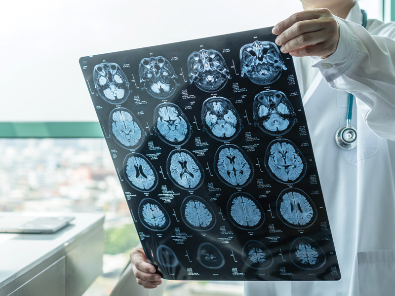 Physician looking at a brain scan, used to explain the link between COVID-19 and strokes
