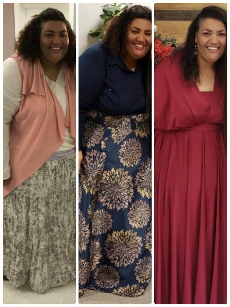 Deanna Lariz in three stages of her weight loss after bariatric sleeve surgery