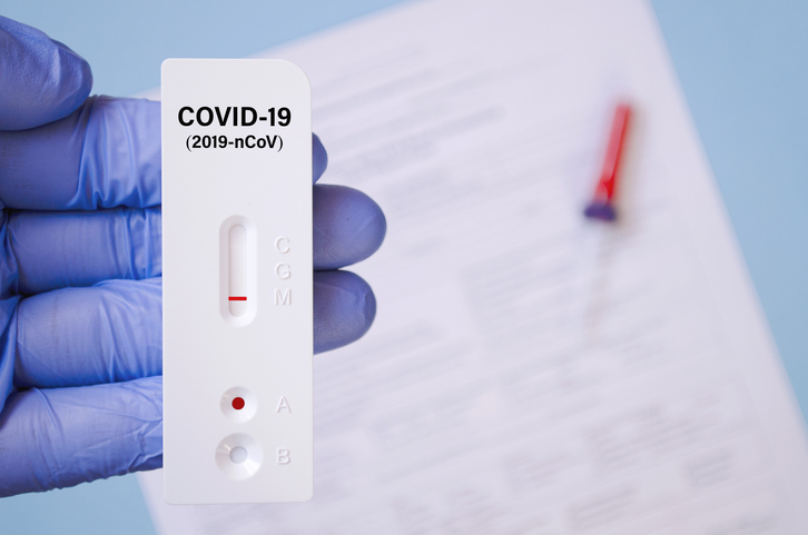 """COVID-19 test with the words """"COVID-19 (2019 nCoV) on it"""