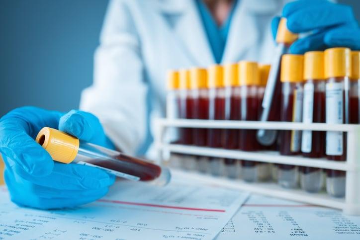 Blood vials in a lab