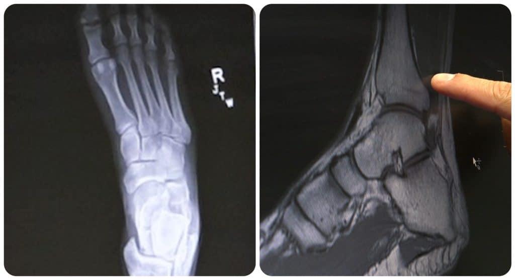 X-rays of DeSoto Fire Capt. Craig Kirk's foot