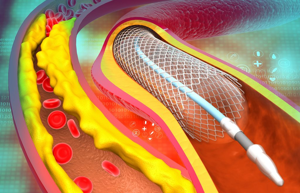 Image of a balloon angioplasty