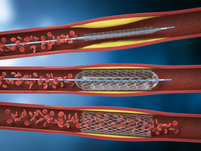 A representation of angioplasty and a stent after a heart attack