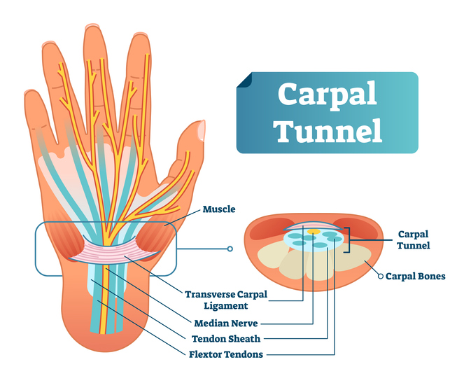 Explanation and anatomical display of carpal tunnel syndrome